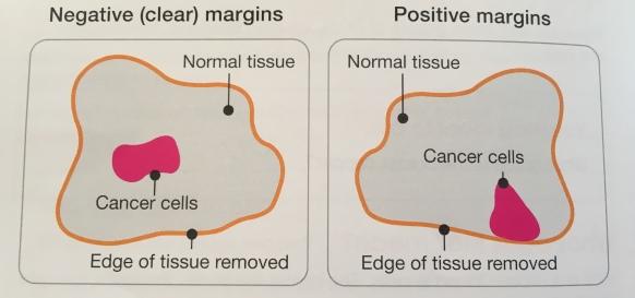 clear margins